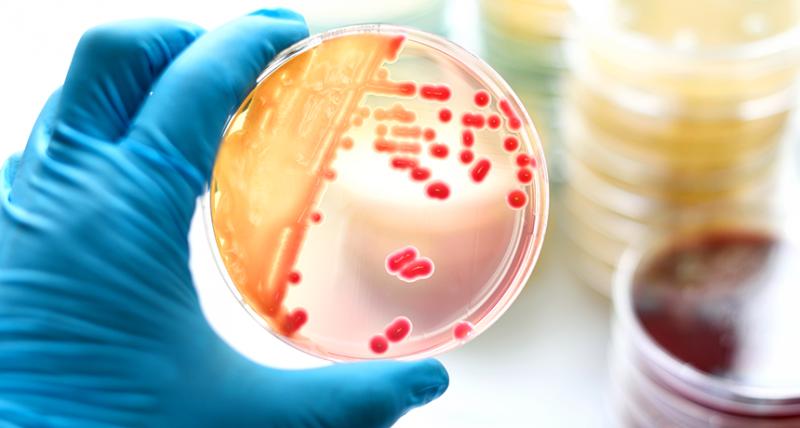 ابزار تشخیص میکروب با تلاش یک محقق ایرانی ساخته شد