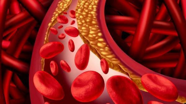 اگر این علائم را دارید کلسترول خون تان بالاست