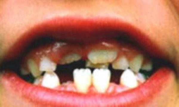فضانگهدارنده ها به جای دندان های شیری